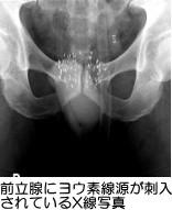 前立腺にヨウ素線源が刺入されているX線写真